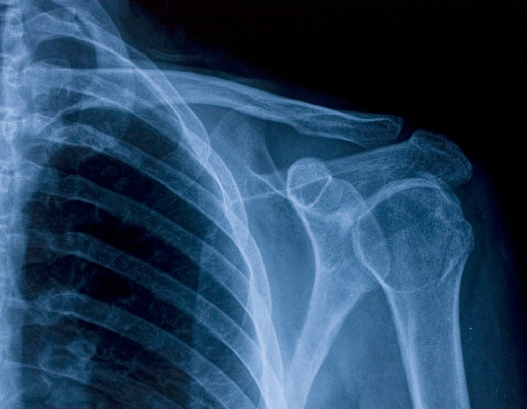 Silver Recovery & Recycling X-Rays (1)